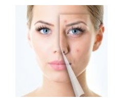 Acne Scars Treatment Jaipur